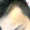 薄毛でも似合う髪型【M字ハゲ】編