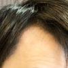 薄毛が気になる人はこんな髪をやっちゃダメ!!